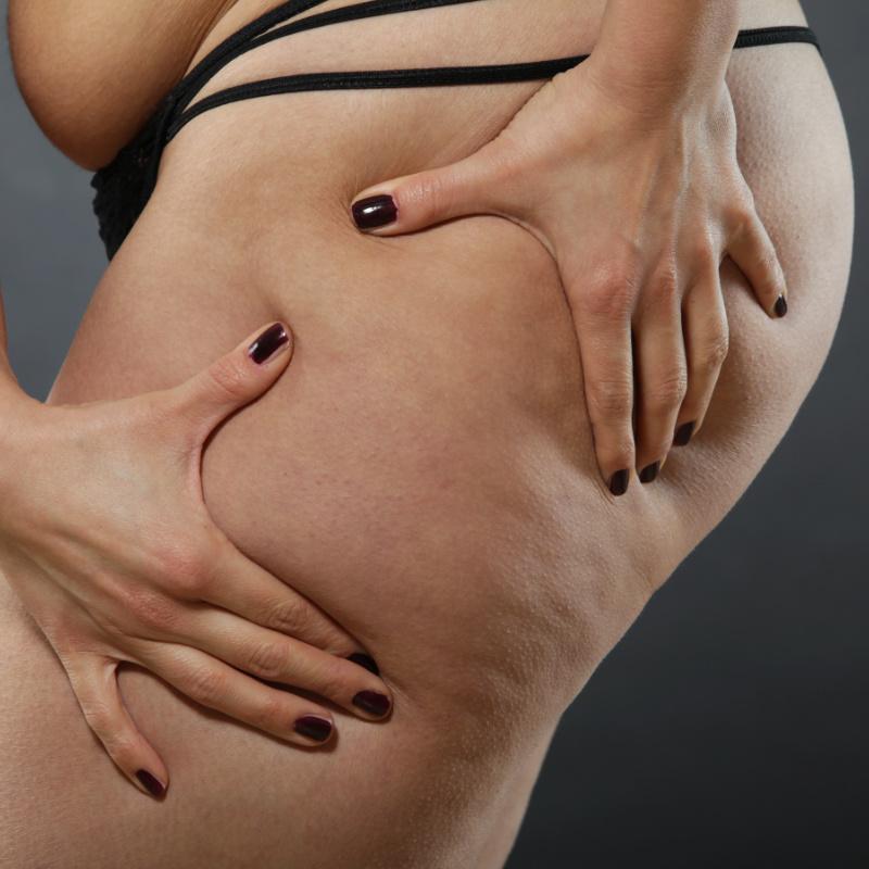 Eliminación de estrías y celulitis