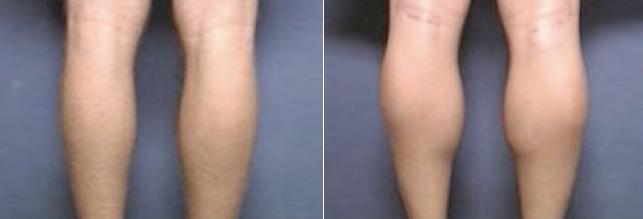Implantes de Pantorrillas