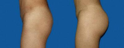Implantes de Glúteos
